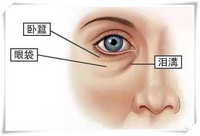 認清眼袋的類型