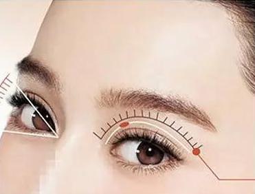 雙眼皮手術有幾種,有哪些注意事項—健麗醫美