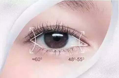 开眼角类型