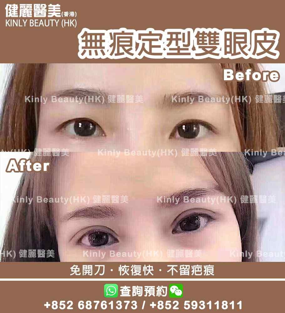 無痕定型雙眼皮