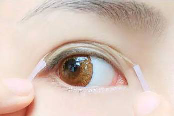 雙眼皮貼的危害你知道嗎|做雙眼皮找健麗,讓眼睛更自然