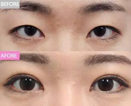 雙眼皮案例