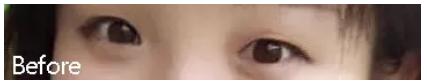 雙眼皮類型