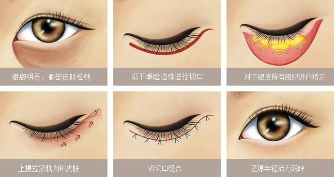 眼袋的類型