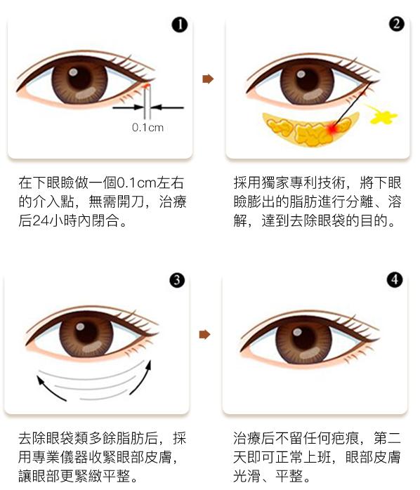 去眼袋技術原理