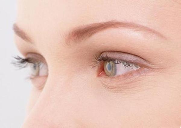 健麗塑造雙眼皮|影響雙眼皮的五個原因