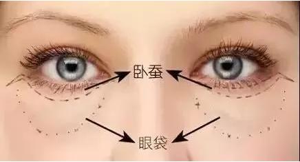 眼袋種類有五種,去眼袋方法只有一種!