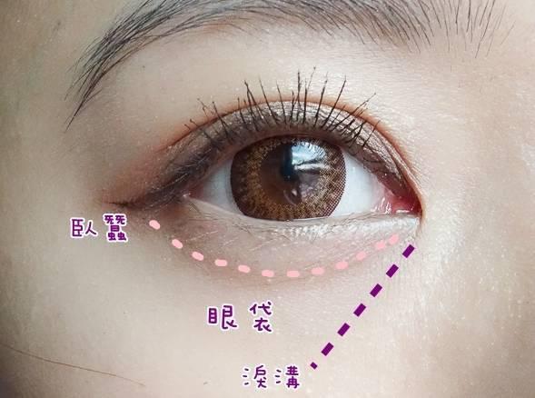 祛除眼袋不再烦恼,了解去眼袋技术的内幕,少走弯路