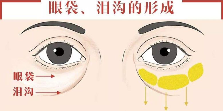 眼袋是怎麼形成的