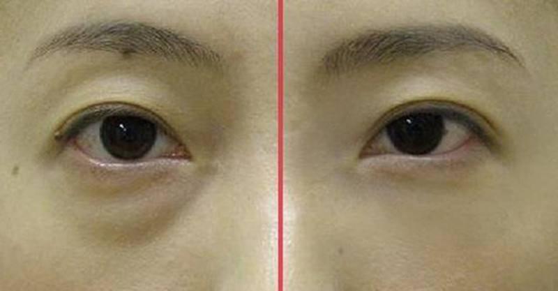 眼袋的出現會帶來哪些壞處?