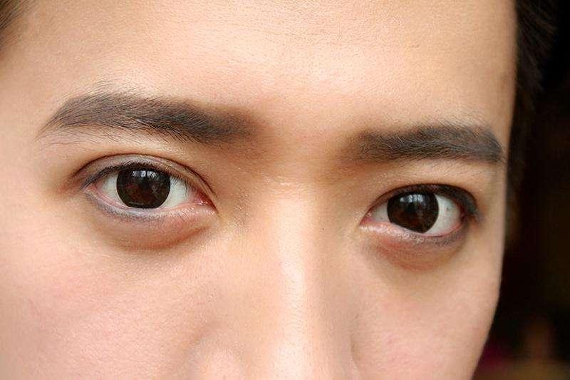 男士是否可以做去眼袋手術
