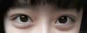 脂肪型眼袋_健麗醫美