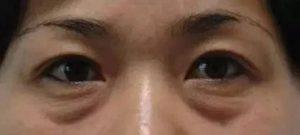 混合型眼袋_健麗醫美