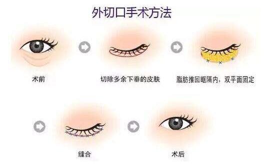 去眼袋是能將眼袋完全去除幹凈嗎?