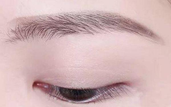 切開雙眼皮和埋線雙眼皮的區別