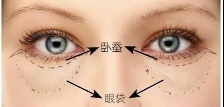 眼袋和臥蠶到底如何區分呢