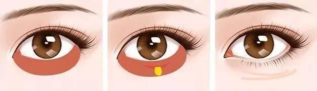眼袋怎麽消除,去眼袋最有效的方法,如何去除眼袋?