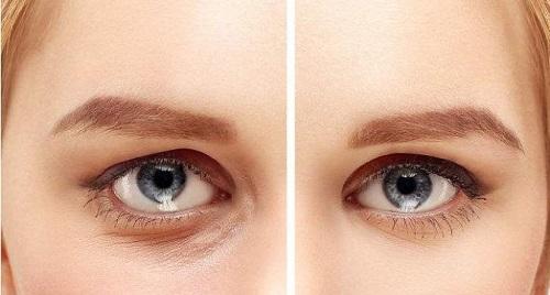 如果已經形成眼袋,怎麽去眼袋?