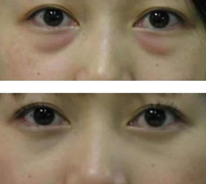 眼袋的分類及祛眼袋的方法