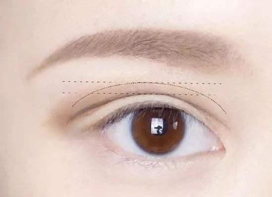 半切雙眼皮和全切雙眼皮區別有什麽不同