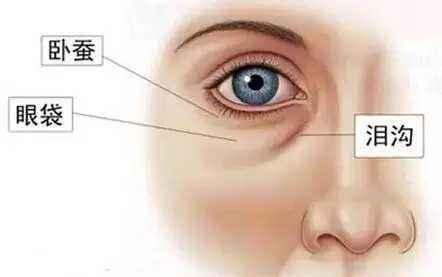 了解淚溝和眼袋有什麼區別