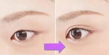 怎樣去眼袋黑眼圈?生活中有哪些方法去黑眼圈