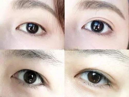 腫眼泡不好貼雙眼皮貼 選對形狀三秒就可以搞定