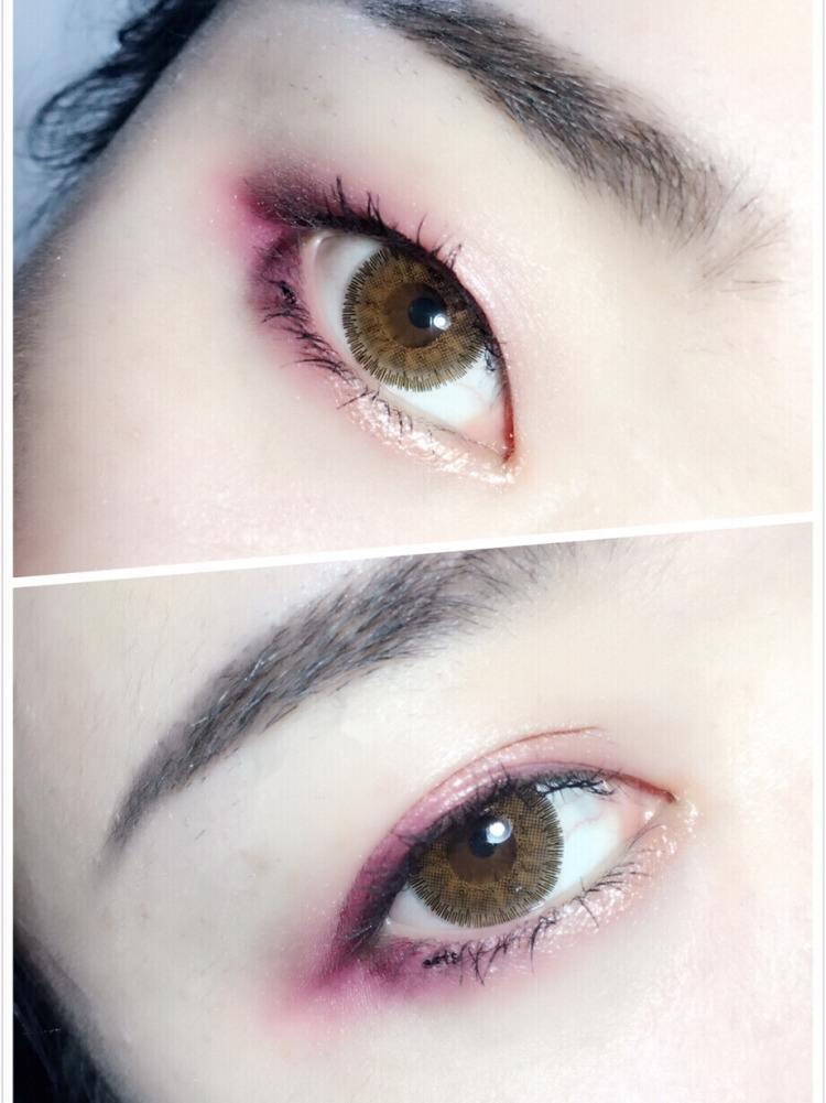 雙眼皮手術or雙眼皮貼,妳選哪壹種?