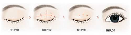 做完雙眼皮手術壹般多久能消腫