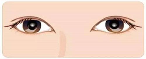 雙眼皮修復適用的情況有哪些