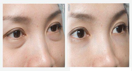 做外切法去眼袋能維持多久