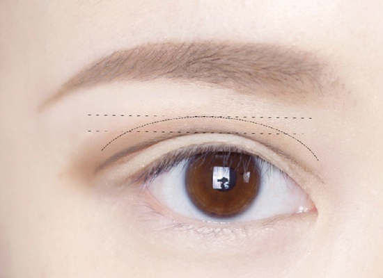 用射頻方法去眼袋的效果好嗎