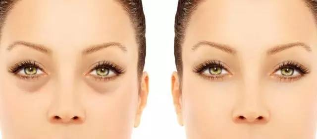 眼袋是什麽原因引起的 揭秘引發眼袋的三個原因
