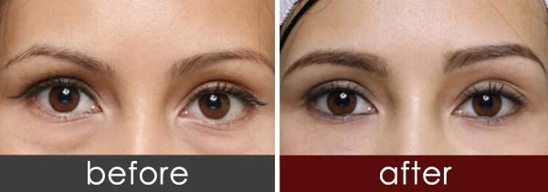 內切法去眼袋手術需要註意什麽?