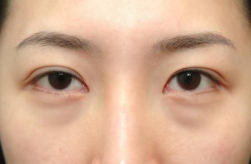 眼袋真的很顯老,給妳祛除眼袋的三個理由