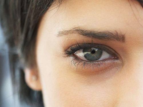 黑眼圈怎麽去,黑眼圈很重怎麼辦_香港健麗醫美