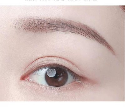 健麗醫美:做雙眼皮手術有哪些方法