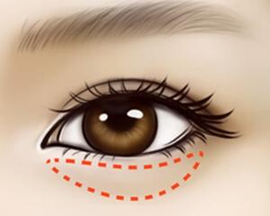 健麗醫美教你如何徹底去除眼袋