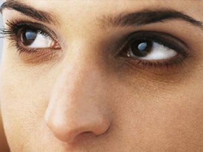 怎麽去黑眼圈 健麗醫美教妳五招應對黑眼圈