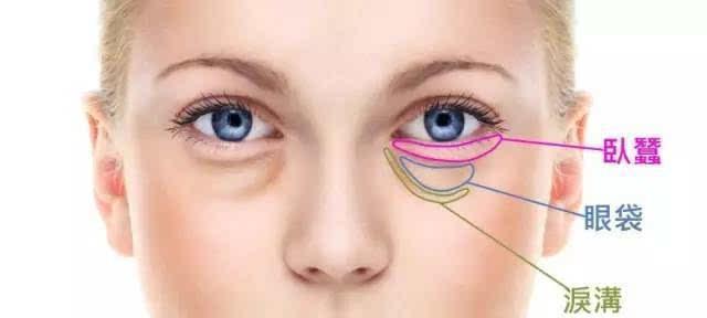 健麗小課堂:眼袋是怎樣形成的?有哪幾種類型呢?