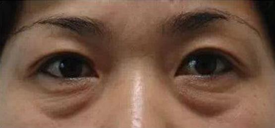 健麗醫美怎麽去除脂肪型眼袋
