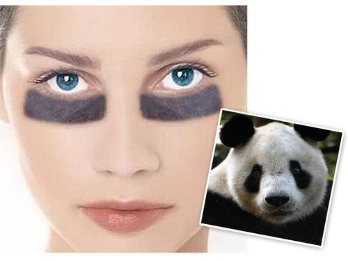 黑眼圈的形成原因是什麽