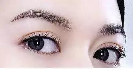 健麗醫美:開眼角雙眼皮——立體大眼更有神
