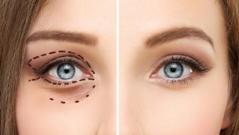 什麽情況下需要做眼部整形修復