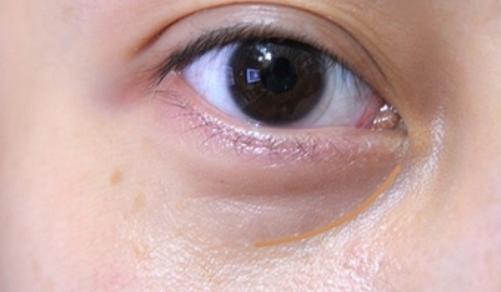 自體脂肪填充淚溝效果怎麽樣|健麗眼袋治療中心