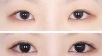 什麽人不適合做開眼角手術